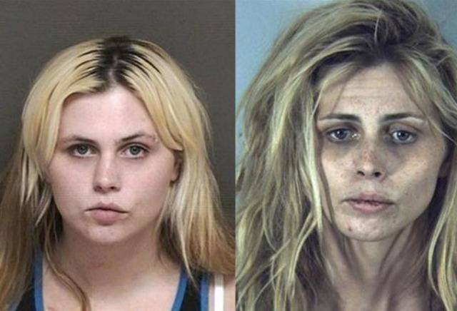 Photo avant apres prise drogue