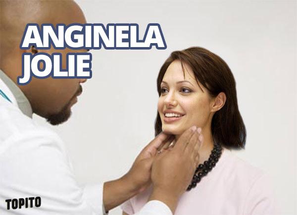 angine-jolie