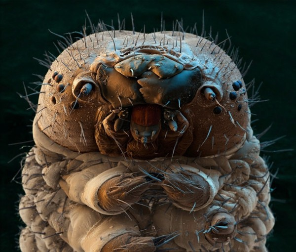 image-microscope-chenille