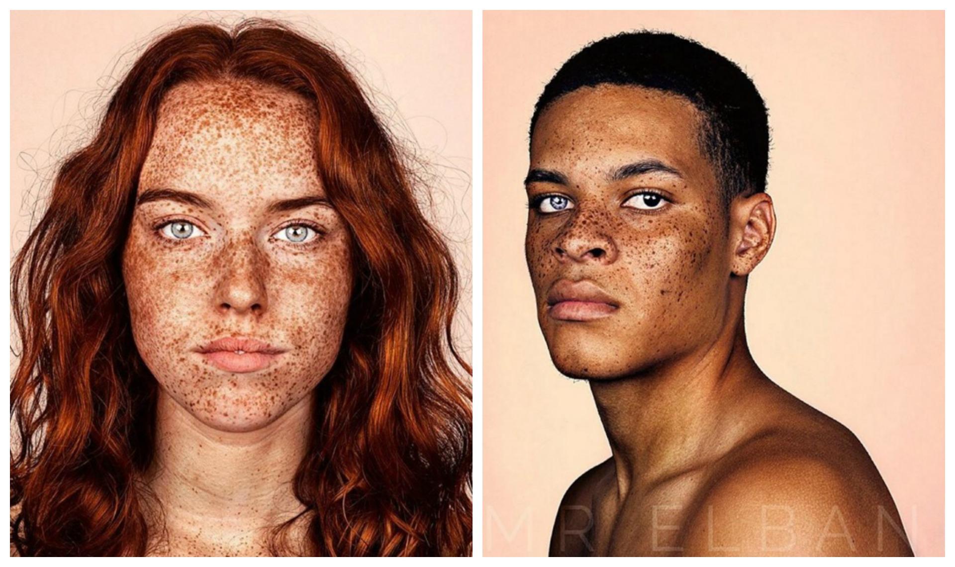 Les taches de pigment sur le front et sur la personne