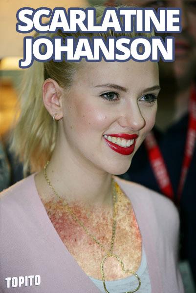 scarlatine-johanson