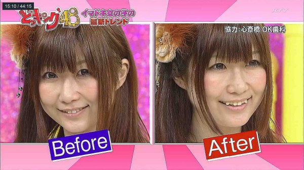 befo-after